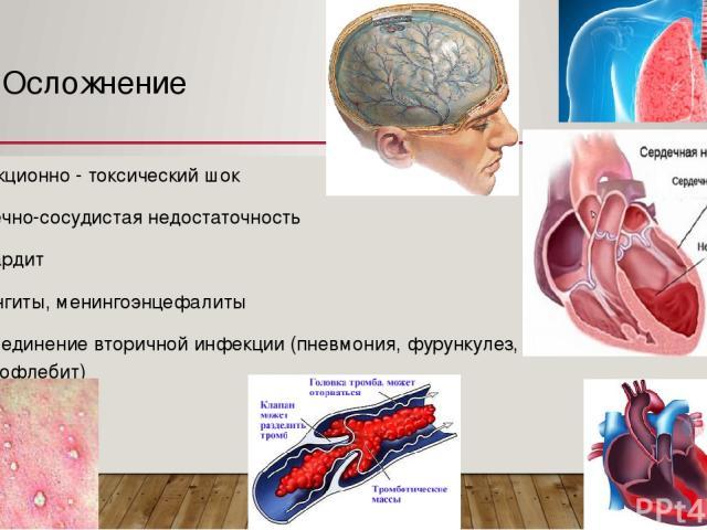 Осложнение Инфекционно - токсический шок Сердечно-сосудистая недостаточность Миокардит Менингиты, менингоэнцефалиты Присоединение вторичной инфекции (пневмония, фурункулез, тромбофлебит)