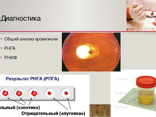 Диагностика Общий анализ крови/мочи РНГА РНИФ