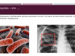Туберкулез – это … ... – Это хроническая инфекция, вызываемая бактериями Mycobac