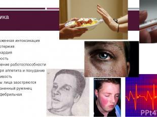 Клиника Выраженная интоксикация Гипертермия Тахикардия Слабость Снижение работос