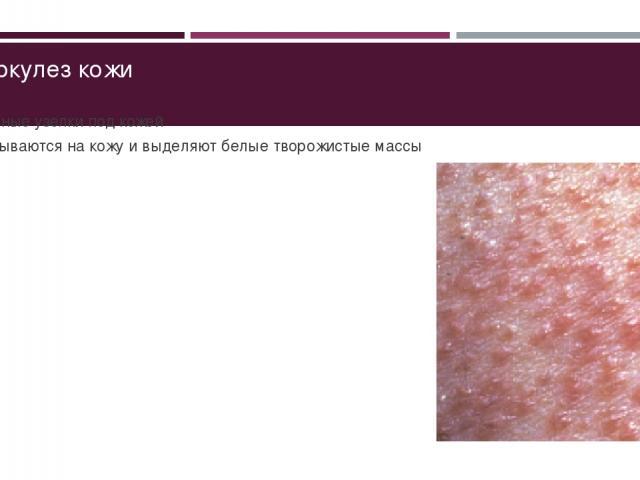 Туберкулез кожи Плотные узелки под кожей Вскрываются на кожу и выделяют белые творожистые массы