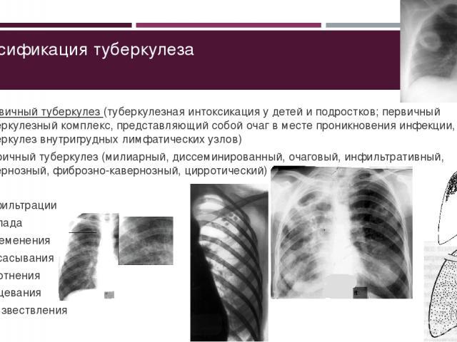 Классификация туберкулеза Первичный туберкулез (туберкулезная интоксикация у детей и подростков; первичный туберкулезный комплекс, представляющий собой очаг в месте проникновения инфекции, и туберкулез внутригрудных лимфатических узлов) Вторичный ту…