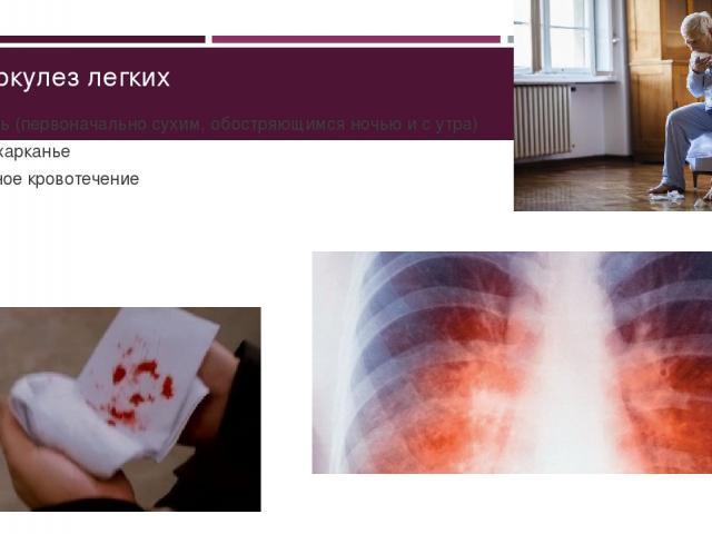 Туберкулез легких Кашель (первоначально сухим, обостряющимся ночью и с утра) Кровохарканье Легочное кровотечение