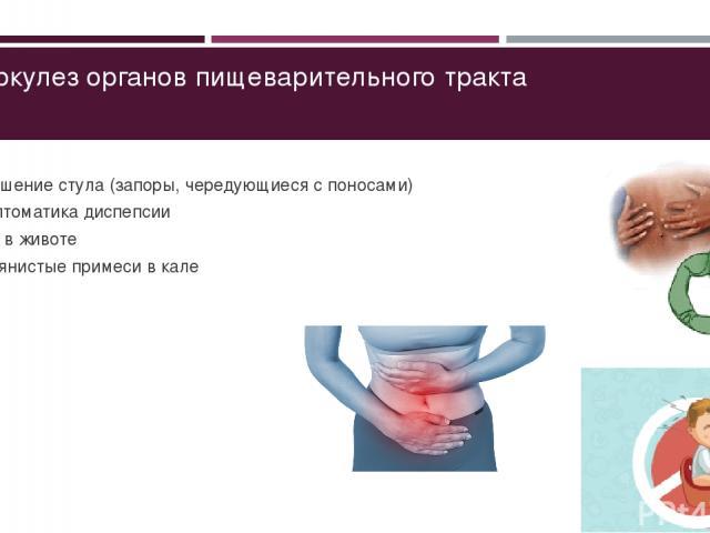 Туберкулез органов пищеварительного тракта Нарушение стула (запоры, чередующиеся с поносами) Симптоматика диспепсии Боль в животе Кровянистые примеси в кале