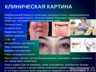 КЛИНИЧЕСКАЯ КАРТИНА Инкубационный период от нескольких часов до 6суток, у вакци