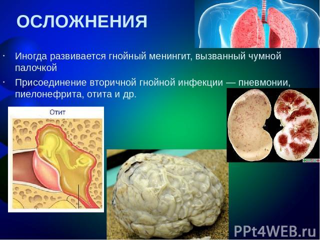 ОСЛОЖНЕНИЯ Иногда развивается гнойный менингит, вызванный чумной палочкой Присоединение вторичной гнойной инфекции— пневмонии, пиелонефрита, отита и др.