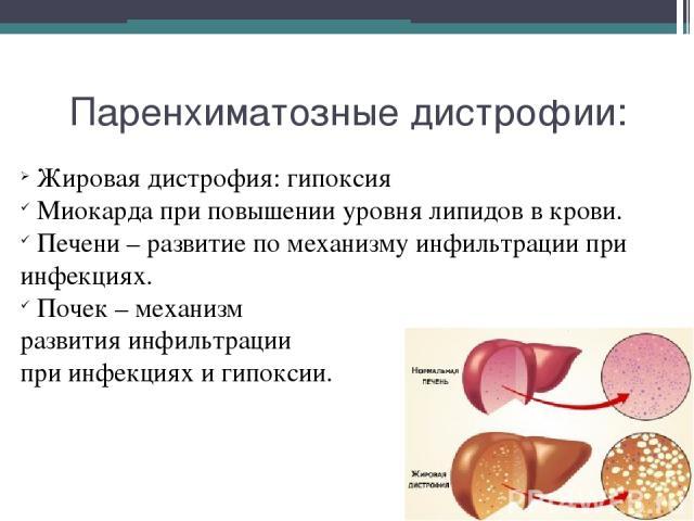 Паренхиматозные дистрофии: Жировая дистрофия: гипоксия Миокарда при повышении уровня липидов в крови. Печени – развитие по механизму инфильтрации при инфекциях. Почек – механизм развития инфильтрации при инфекциях и гипоксии.