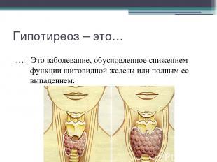 Гипотиреоз – это… … - Это заболевание, обусловленное снижением функции щитовидно