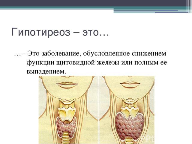 Гипотиреоз – это… … - Это заболевание, обусловленное снижением функции щитовидной железы или полным ее выпадением.