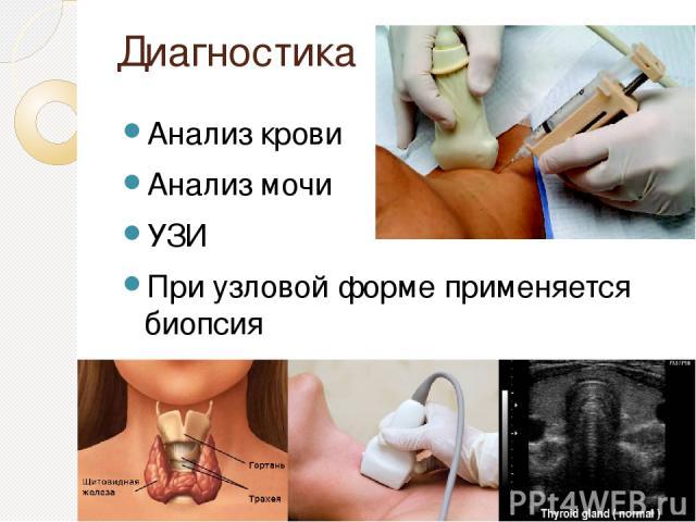 Диагностика Анализ крови Анализ мочи УЗИ При узловой форме применяется биопсия