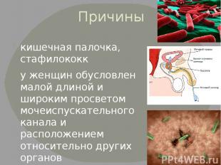 Причины кишечная палочка, стафилококк у женщин обусловлен малой длиной и широким