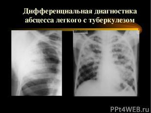 Дифференциальная диагностика абсцесса легкого с туберкулезом