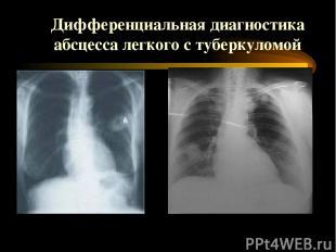 Дифференциальная диагностика абсцесса легкого с туберкуломой