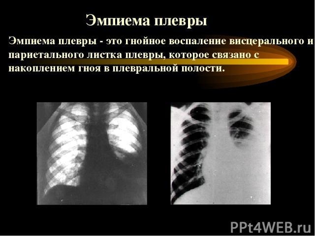 Эмпиема плевры - это гнойное воспаление висцерального и париетального листка плевры, которое связано с накоплением гноя в плевральной полости. Эмпиема плевры