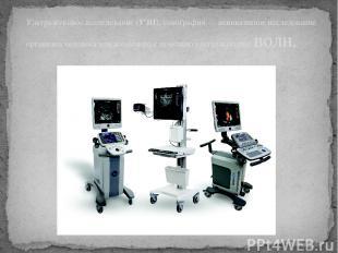 Ультразвуковое исследование (УЗИ), сонография — неинвазивное исследование органи