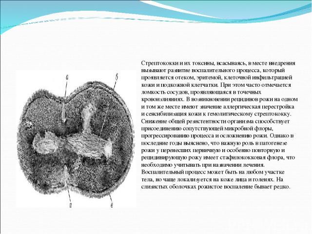 Стрептококки и их токсины, всасываясь, в месте внедрения вызывают развитие воспалительного процесса, который проявляется отеком, эритемой, клеточной инфильтрацией кожи и подкожной клетчатки. При этом часто отмечается ломкость сосудов, проявляющаяся …