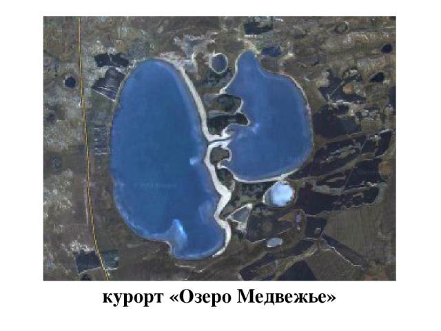 курорт «Озеро Медвежье»