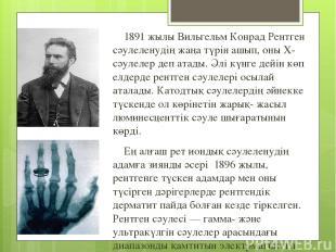1891 жылы Вильгельм Конрад Рентген сәулеленудің жаңа түрін ашып, оны Х-сәулелер