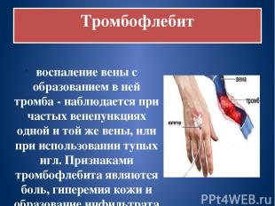 Тромбофлебит воспаление вены с образованием в ней тромба - наблюдается при часты