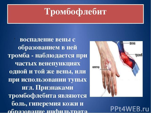 Тромбофлебит воспаление вены с образованием в ней тромба - наблюдается при частых венепункциях одной и той же вены, или при использовании тупых игл. Признаками тромбофлебита являются боль, гиперемия кожи и образование инфильтрата по ходу вены. Темпе…