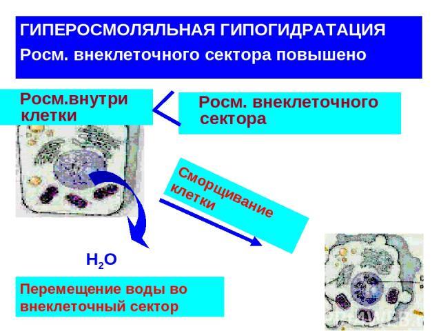 ГИПЕРОСМОЛЯЛЬНАЯ ГИПОГИДРАТАЦИЯ Росм. внеклеточного сектора повышено Росм.внутри клетки Н2О Росм. внеклеточного сектора Перемещение воды во внеклеточный сектор Сморщивание клетки