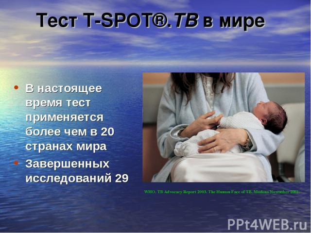 В настоящее время тест применяется более чем в 20 странах мира Завершенных исследований 29 WHO. TB Advocacy Report 2003. The Human Face of TB. Modena November 2001. Тест T-SPOT®.ТВ в мире