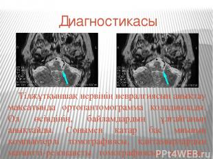 Диагностикасы Тілжұтқыншақ нервінің невралгиясын анықтау мақсатында ортопантомог