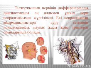 Тілжұтқыншақ нервінің дифференциалды диагностикасы ең алдымен үшкіл нерв невралг