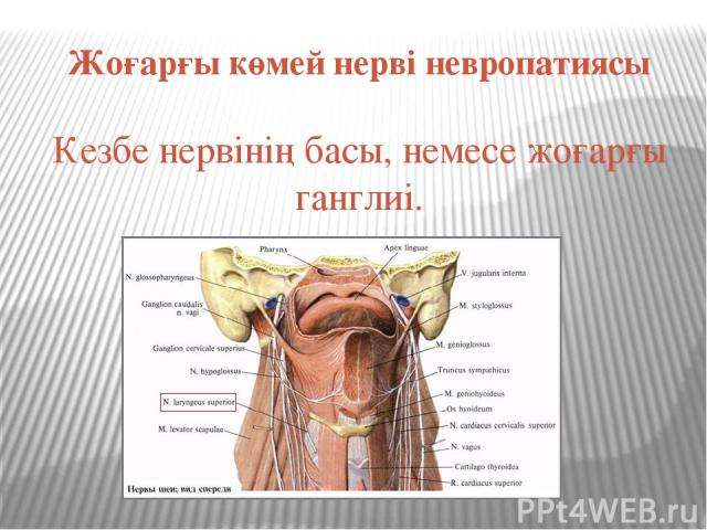 Жоғарғы көмей нерві невропатиясы Кезбе нервінің басы, немесе жоғарғы ганглиі.