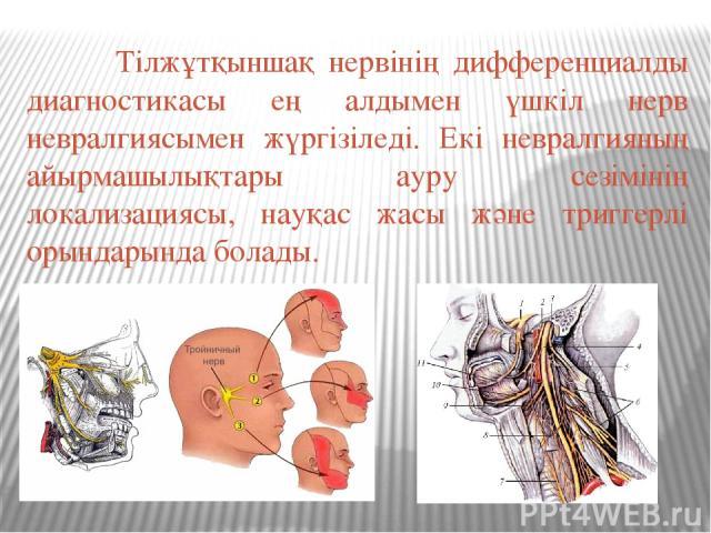 Тілжұтқыншақ нервінің дифференциалды диагностикасы ең алдымен үшкіл нерв невралгиясымен жүргізіледі. Екі невралгияның айырмашылықтары ауру сезімінің локализациясы, науқас жасы және триггерлі орындарында болады.
