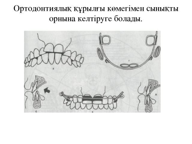 Ортодонтиялық құрылғы көмегімен сынықты орнына келтіруге болады.