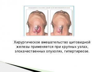 Хирургическое вмешательство щитовидной железы применяется при крупных узлах, зло