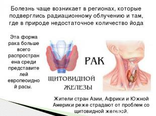 Болезнь чаще возникает в регионах, которые подверглись радиационному облучению и