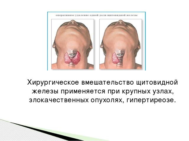 Хирургическое вмешательство щитовидной железы применяется при крупных узлах, злокачественных опухолях, гипертиреозе.