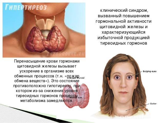 клинический синдром, вызванный повышением гормональной активности щитовидной железы и характеризующийся избыточной продукцией тиреоидных гормонов Перенасыщение крови гормонами щитовидной железы вызывает ускорение в организме всех обменных процессов…