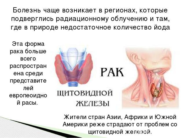 Болезнь чаще возникает в регионах, которые подверглись радиационному облучению и там, где в природе недостаточное количество йода Жители стран Азии, Африки и Южной Америки реже страдают от проблем со щитовидной железой. Эта форма рака больше всего р…