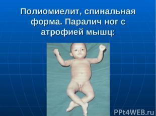 Полиомиелит, спинальная форма. Паралич ног с атрофией мышц: