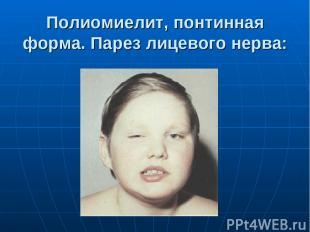 Полиомиелит, понтинная форма. Парез лицевого нерва:
