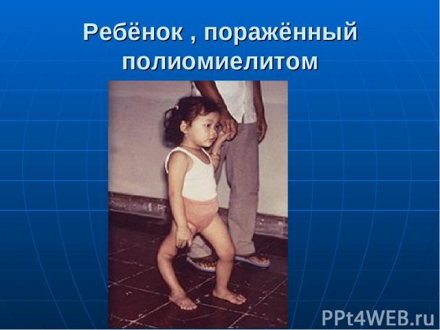 Ребёнок , поражённый полиомиелитом