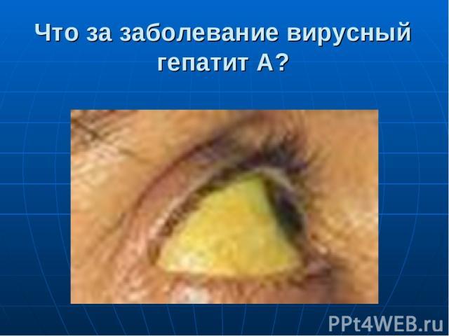 Что за заболевание вирусный гепатит А?