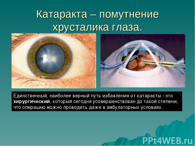 Последствия после операции катаракты глаза