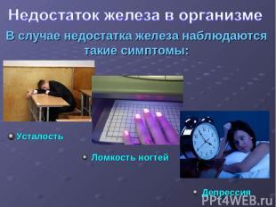 В случае недостатка железа наблюдаются такие симптомы: Усталость Ломкость ногтей