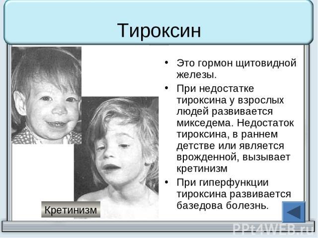 Тироксин Это гормон щитовидной железы. При недостатке тироксина у взрослых людей развивается микседема. Недостаток тироксина, в раннем детстве или является врожденной, вызывает кретинизм При гиперфункции тироксина развивается базедова болезнь. Кретинизм