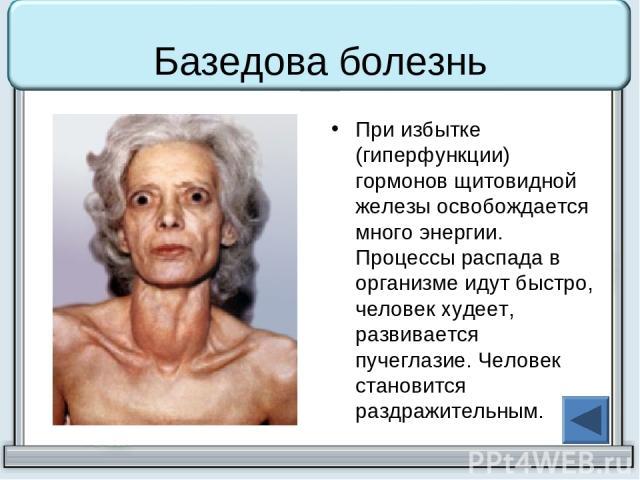Базедова болезнь При избытке (гиперфункции) гормонов щитовидной железы освобождается много энергии. Процессы распада в организме идут быстро, человек худеет, развивается пучеглазие. Человек становится раздражительным.
