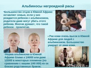 • Рак кожи очень высок в Южной Африке для людей с альбинизмом. Большинство умира