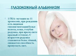 1 ГКА- мутация на 11 хромосоме, при рождении есть видимая гипопигментация(белые