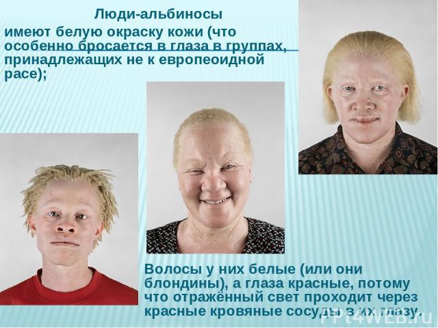 Люди-альбиносы имеют белую окраску кожи (что особенно бросается в глаза в группах, принадлежащих не к европеоидной расе); Волосы у них белые (или они блондины), а глаза красные, потому что отражённый свет проходит через красные кровяные сосуды в их глазу.