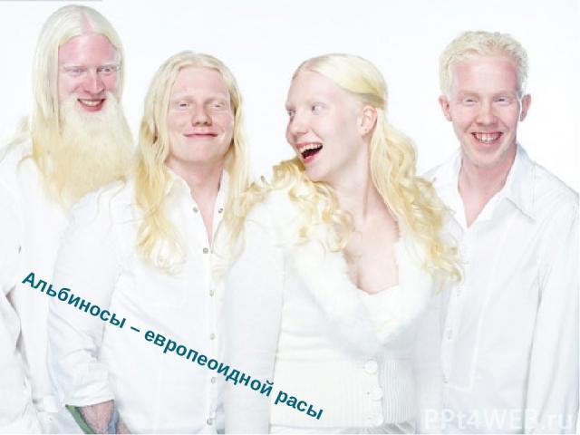 Альбиносы – европеоидной расы