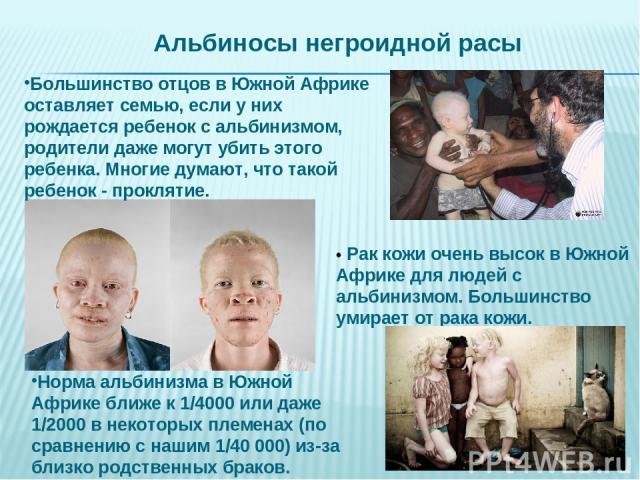 • Рак кожи очень высок в Южной Африке для людей с альбинизмом. Большинство умирает от рака кожи. Большинство отцов в Южной Африке оставляет семью, если у них рождается ребенок с альбинизмом, родители даже могут убить этого ребенка. Многие думают, чт…