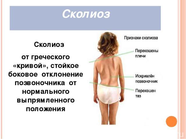 Причины нарушения осанки слабая мускулатура тела; привычка к неправильным позам; неудобная одежда и обувь; врожденные и наследственные причины; перенесенные заболевания и травмы; не соответствующая гигиеническим нормам мебель; малая двигательная акт…